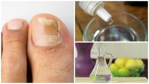 Преборете гъбичките по ноктите с 3 съставки