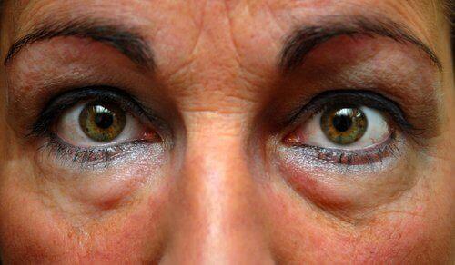 Jорбичките под очите са провокирани от задържане на течности,