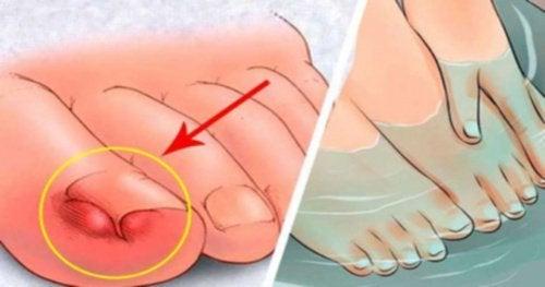 6 домашни средства за облекчаване на врастнали нокти на краката