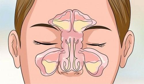 6 трика за отпушване на запушен нос за няколко минути