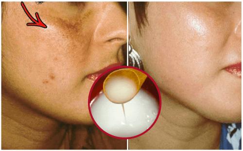 Изсветляване на кожата: направи си крем