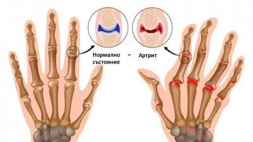 Болезненият артрит: 5 неща, които вероятно не знаете за него