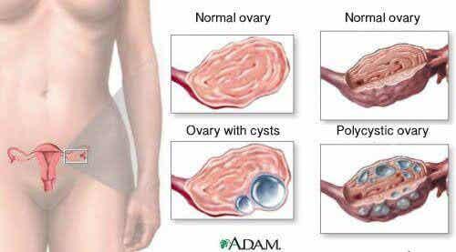 9 факта за кисти на яйчниците, които всяка жена трябва да знае