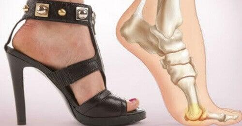5 ползи, когато спрете да носите обувки на високи токчета