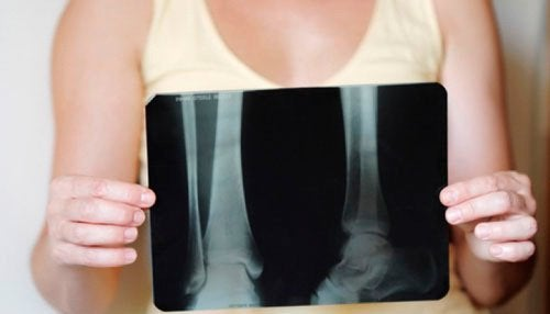 Как да поддържате костната плътност през менопаузата