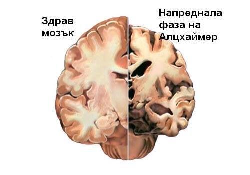 Открийте първите симптоми на Алцхаймер навреме