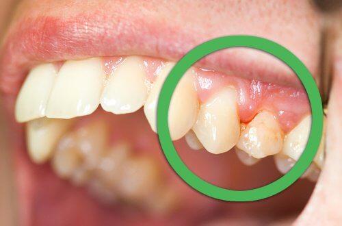 зъбобол при парадонтоза
