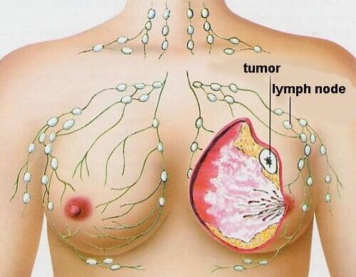 Изследване показва, че тези храни могат да предотвратят рак на гърдата