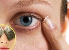 tumni-krugove-pod-ochite