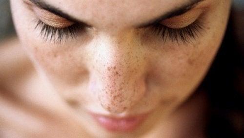 6 натурални средства срещу тъмните петна по кожата