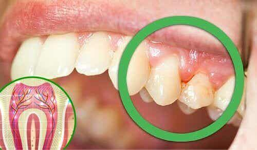 6 причини за зъбобол