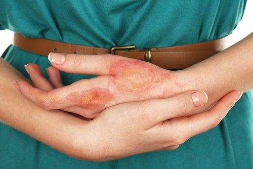 Различни инфекции може да доведат до рак на кожата.