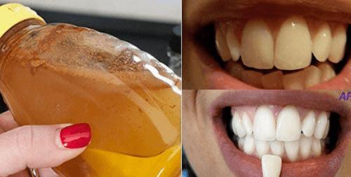 Как да избелите зъбите си със 100% натурална съставка