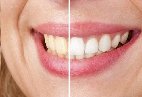Как да избелите зъбите си с ябълков оцет