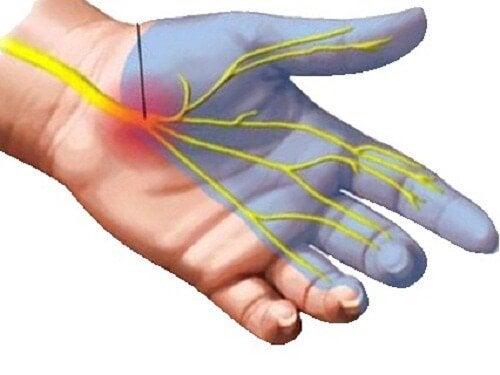 7 лека за облекчаване на болката от карпалния тунел