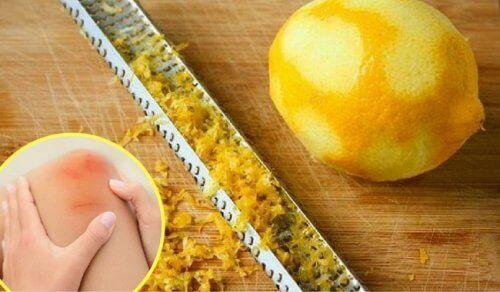 Как да използваме лимоновите кори за лечение на болки в ставите