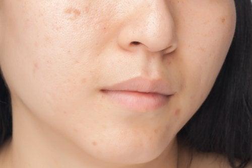тъмните петна по лицето са много неприятни