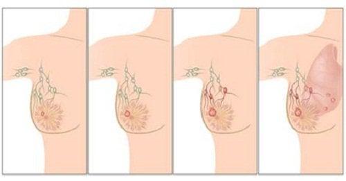 prichini-za-rak-na-gurdata диагностициране на рака на гърдата
