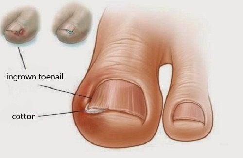 6 изпитани рецепти за врастнали нокти на краката