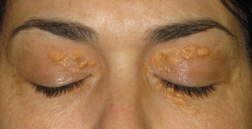 Ксантелазма: Онези бели петна около очите