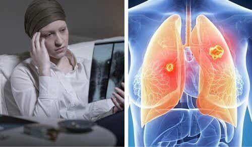 Ракът на белите дробове е много по-смъртоносен за жените
