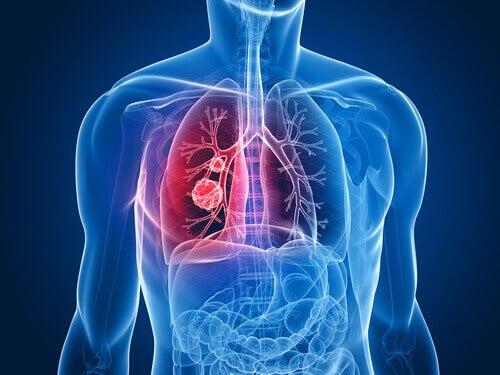 Ракът на белите дробове сред жените