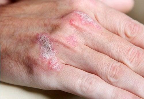 5 неща, които трябва да знаете за автоимунните болести
