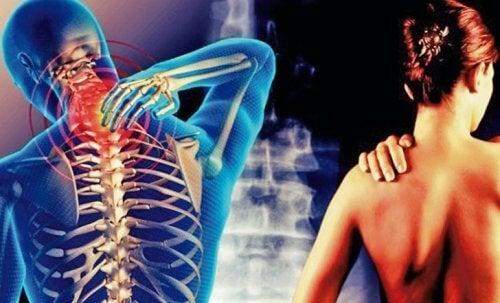 Цервикобрахиален синдром: Болка, която започва от врата и стига до ръцете