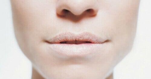 Дехидратацията предизвиква сухота вустата и кожата