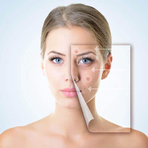 Стомахът създава проблеми с кожата.