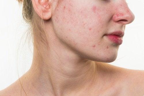 5 храни, които могат да съсипят кожата на лицето ви