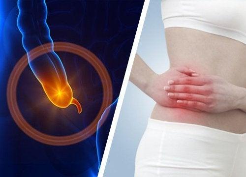 Признаци и симптоми на апендицитът