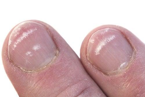 Защо се появяват бели петна по ноктите?