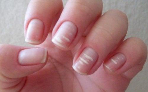 Левконихия е медицинско наименование за бели петна по ноктите.