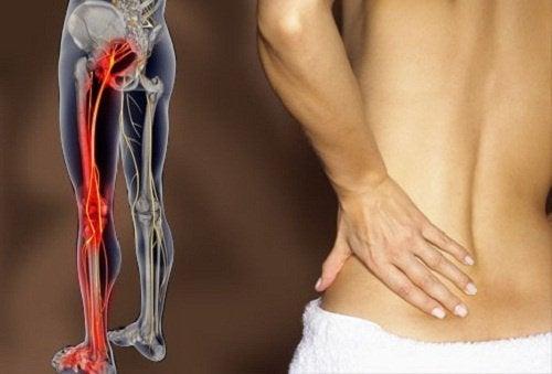 Как да се отървем от болки в седалищния нерв с упражнения