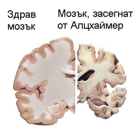 Ранното диагностициране на Алцхаймер спасява живота