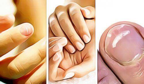 5 знака, с които ноктите ви показват, че нещо не е наред със здравето ви
