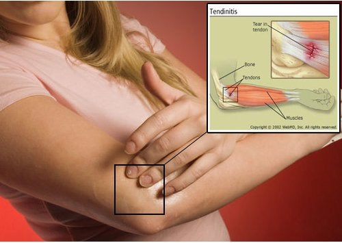 Други причини за болки в ставите са тендонит и бурсит.