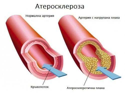 атеросклерозата и високия холестерол