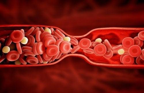 """Невероятно ново лечение за """"лошият"""" холестерол"""