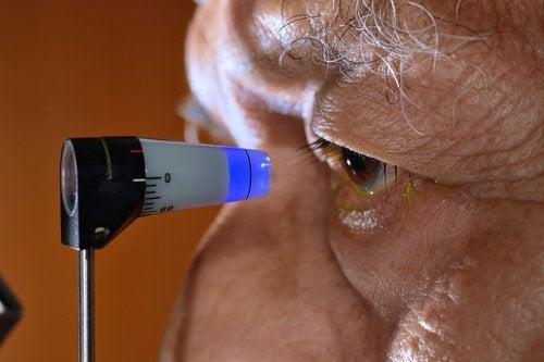 Естествени начини за предотвратяване на глаукомата