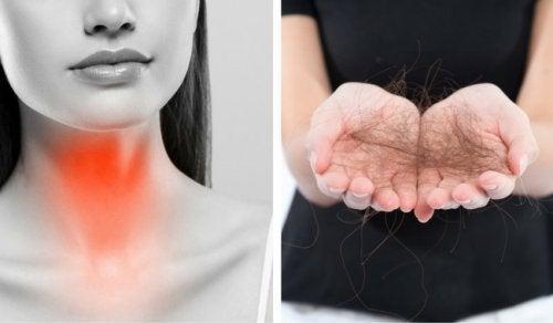 8 съвета за борба с косопада, свързан с щитовидната жлеза