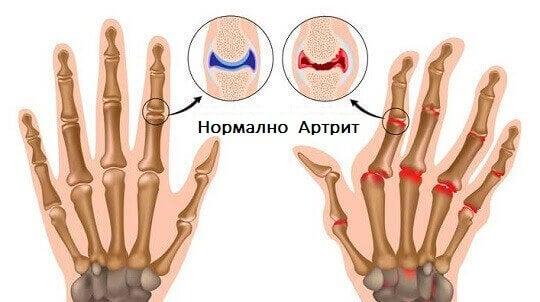 Методи за лечение на артрит