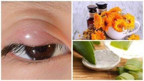 Излекувайте ечемика на окото с тези 7 натурални средства