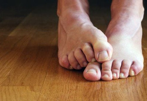 7 неща, които трябва да знаете за гъбичките по ноктите
