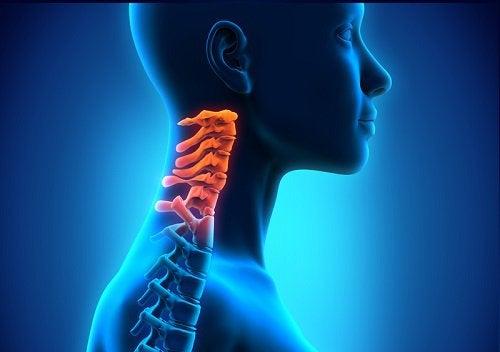 Какво представлява цервикалната спондилоза?