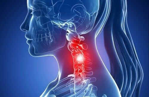 Симптоми на цервикалната спондилоза и методи за натурално лечение