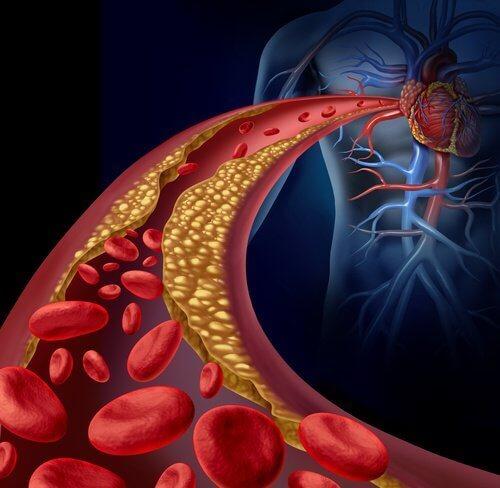 Атеросклерозата е заболяване, което се появява при постоянно високо кръвно налягане.
