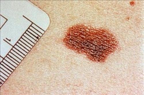 Признаци на рака на кожата, които не трябва да пренебрегвате