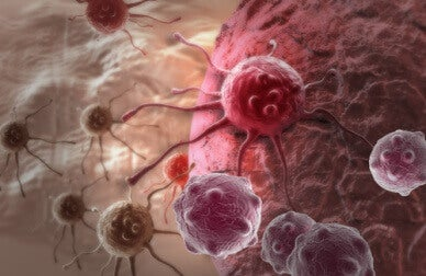 превенцията на рака и действието на сока от куркума